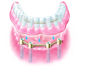 Tooth Replacement - Dental Implants Preston