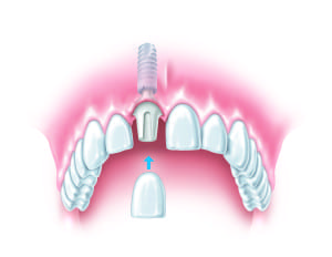 Dental Implants Specialist Preston - Dental Implant Placement