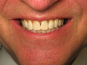 Teeth Whitening Preston