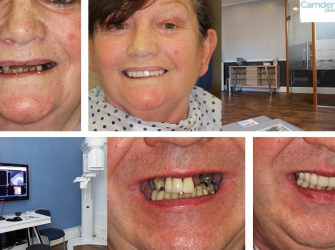 Dental Implants Preston, Dentures Preston at Camden Place