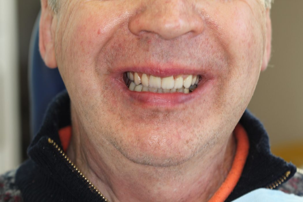 Bridge Dental Treatment - Dentures - Dental Implants Preston
