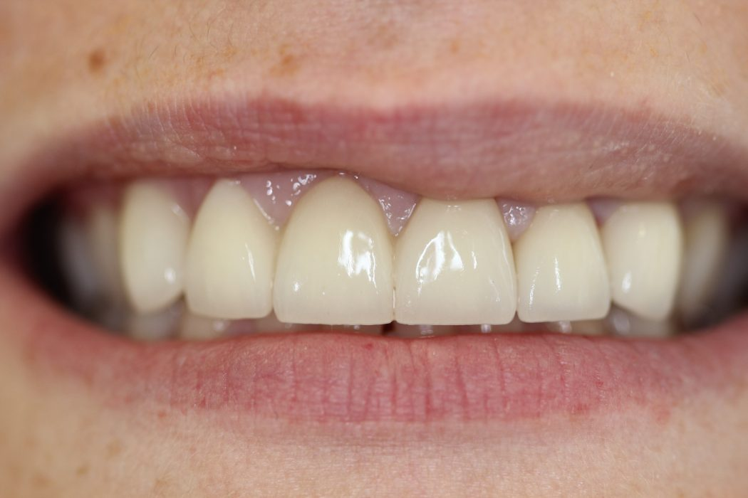 Bridge Dental Treatment Preston