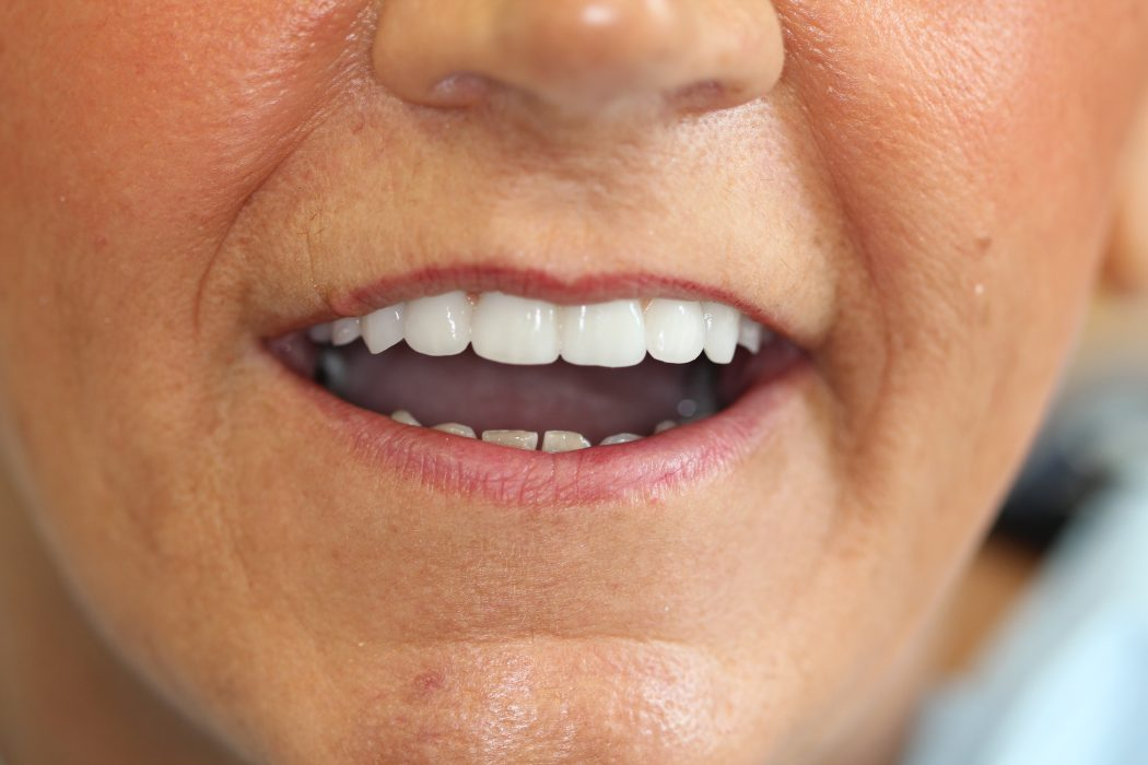 Dentures - Dental Implants Preston