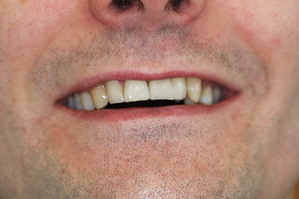 Dental Implants Preston