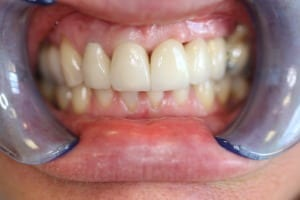 Bridge Dental Work Preston