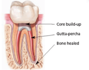 root canal treatments Preston