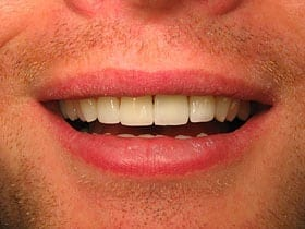 Cosmetic Veneers After