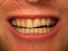 Cosmetic Veneers Before