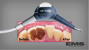 Air Flow Hygienist