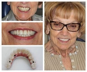All-on-4 dental implants camden place preston