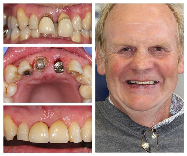 Single Tooth Implant Camden Place Preston