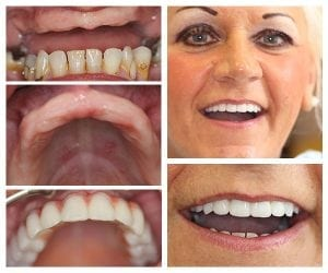 full arch mouth dental implants preston